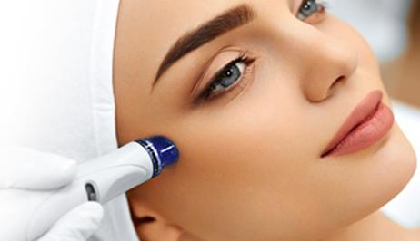 peeling ácido retinóico